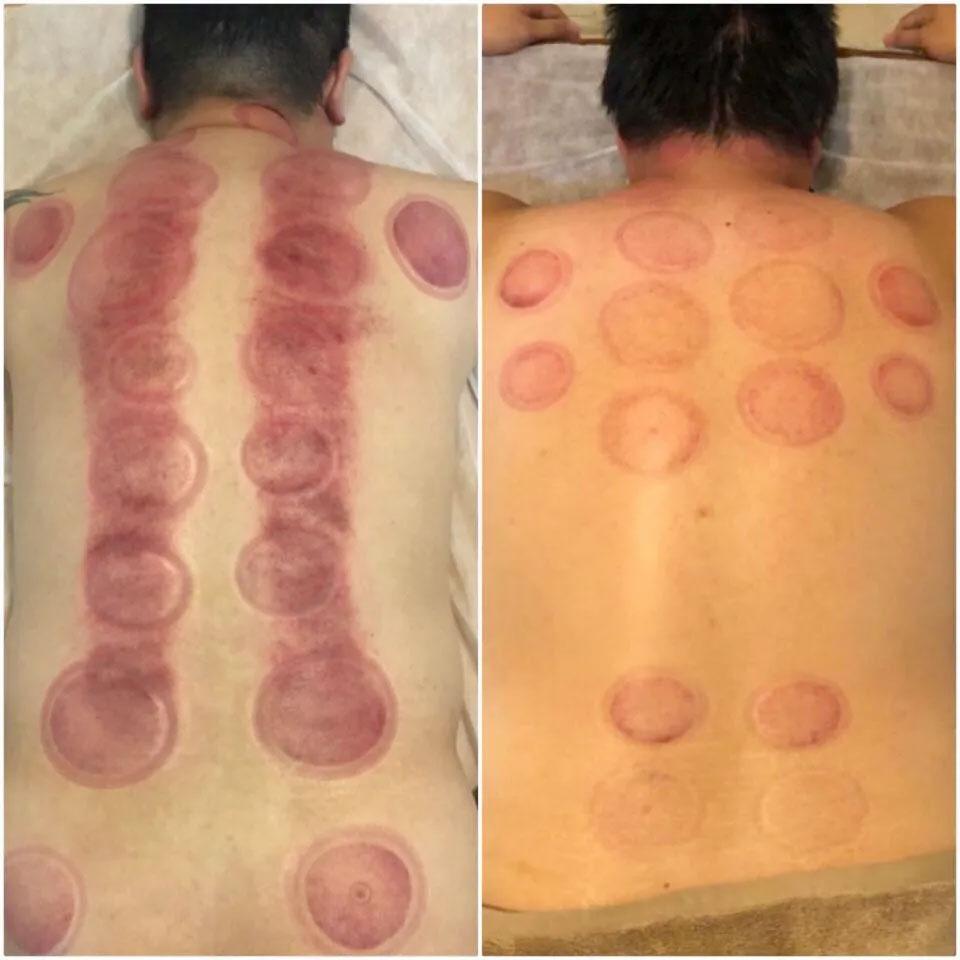 True Massage 按摩刮痧拔罐顏色